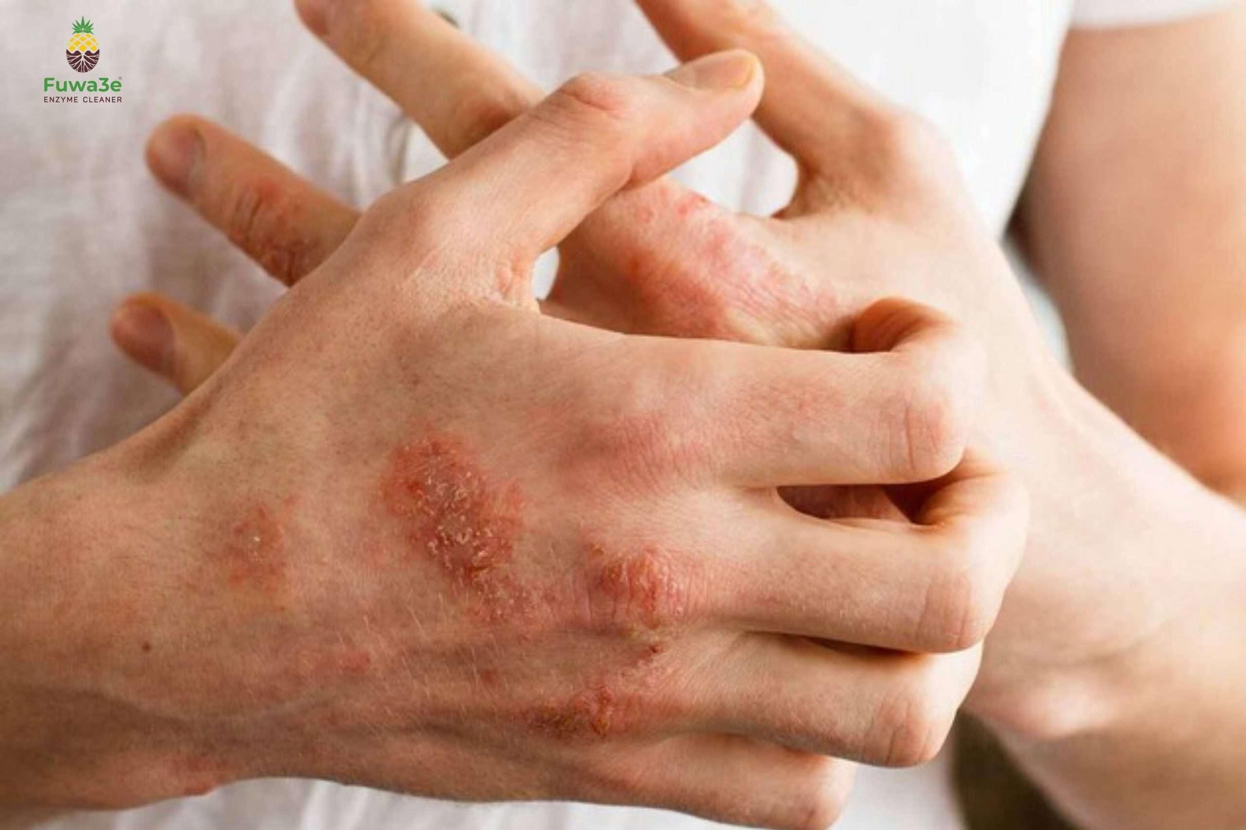 nước rửa tay cho viêm da